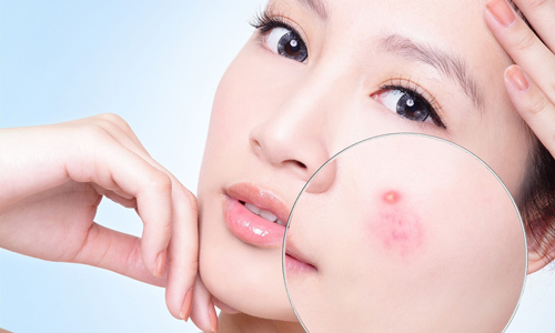 Cải thiện làn da với mật ong rừng 2